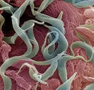 что такое гельминтозы фото